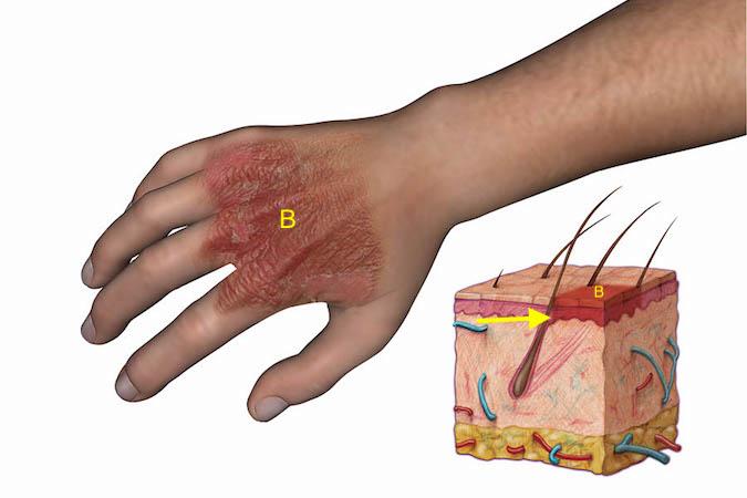 BURNS | Hand Surgery Source