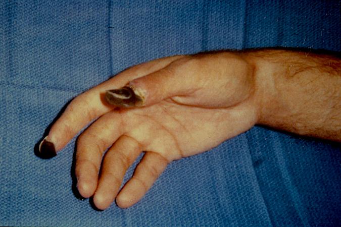 AMPUTATION, FINGER   Hand Surgery Source
