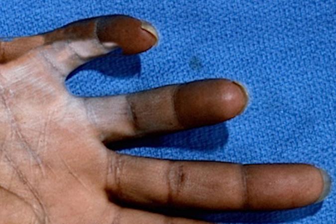 DIGITAL NERVE LACERATION (PALM & FINGER)   Hand Surgery Source