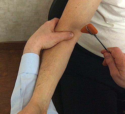 Reflex: Biceps, Brachioradialis, Triceps | Hand Surgery Source