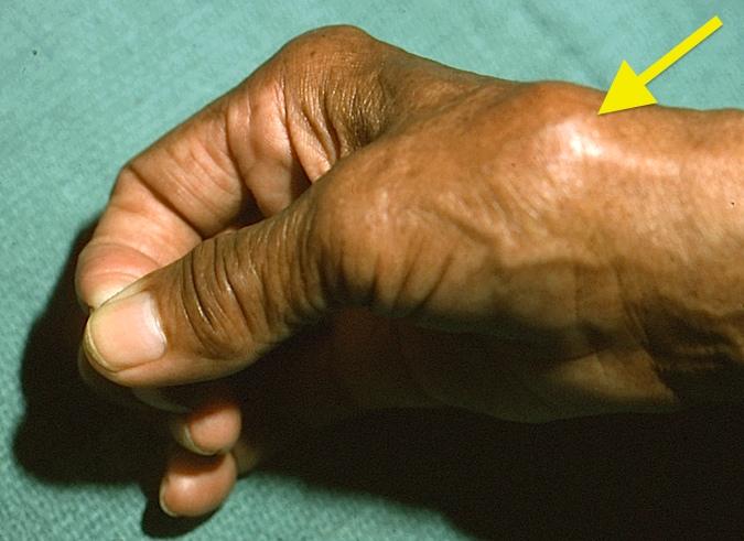 Osteoarthritis Carpometacarpal Cmc Joint Of Thumb Hand Surgery
