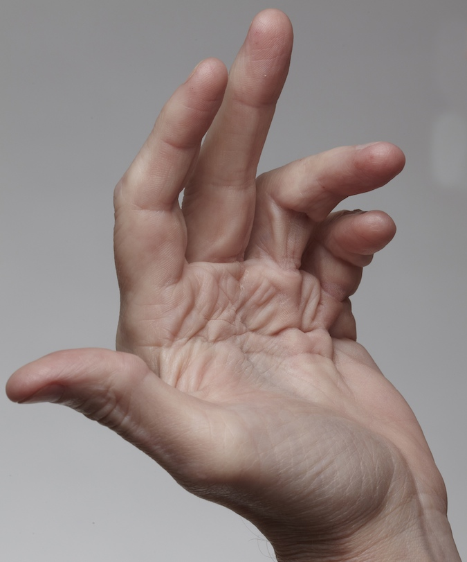 hand disorders the british society for surgery of the hand