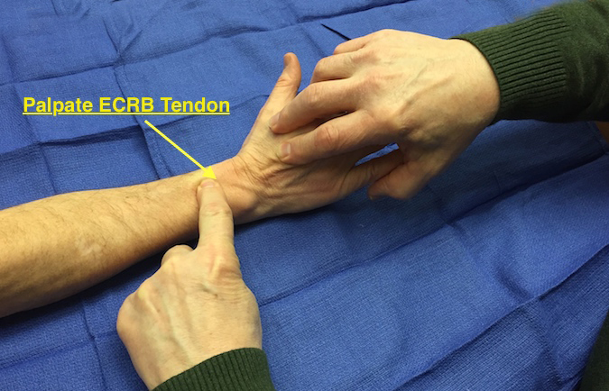 muscle test and tendon exam extensor carpi radialis brevis ecrb