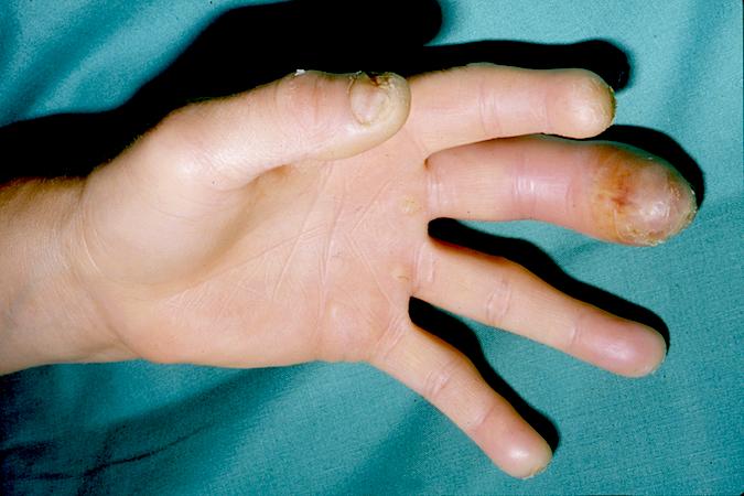 FELON FINGER | Hand Surgery Source