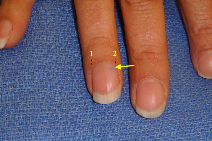 Tumor Of The Nail - +9000 Summer Nail Designs
