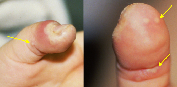 HERPETIC WHITLOW | Hand Surgery Source