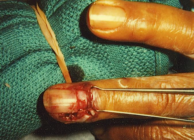 PARONYCHIA FINGER | Hand Surgery Source