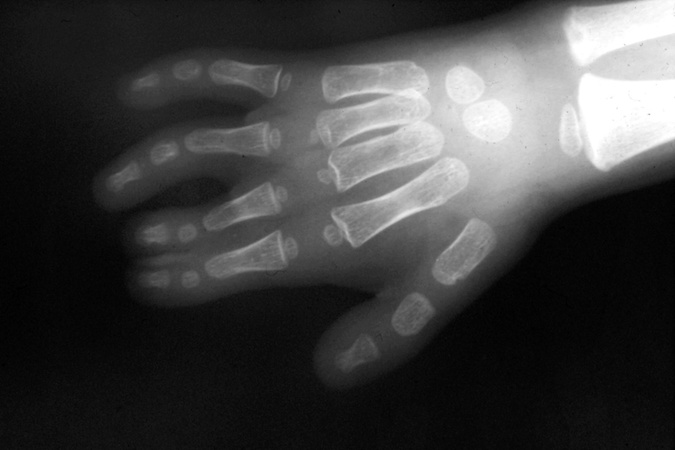 X-ray of left II-III partial  simple syndactyly